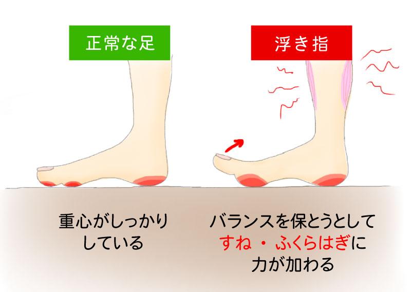 正常な足は重心がしっかりしていることに対して、浮き指はバランスを保とうとしてすね・ふくらはぎに力が加わります