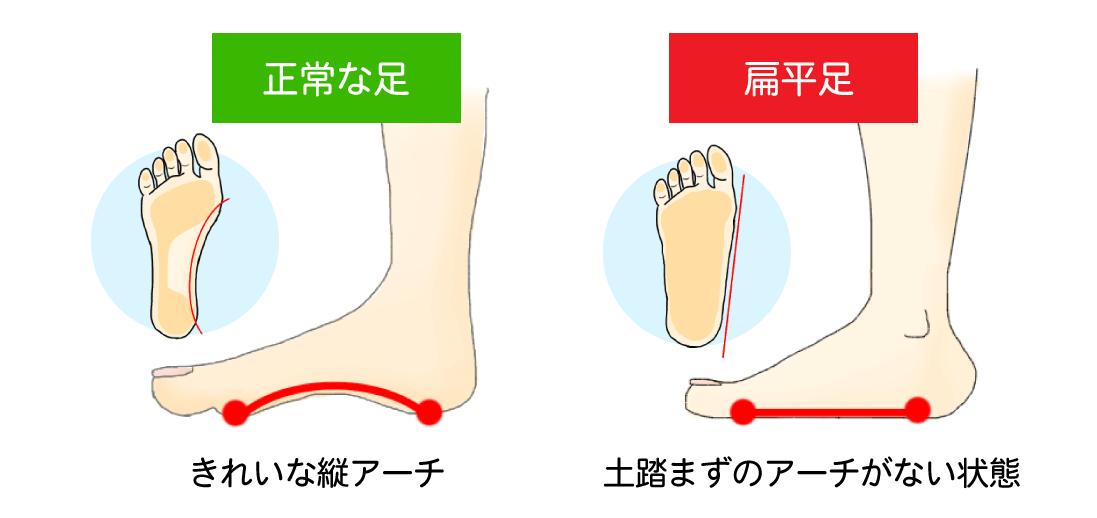 通常の足と扁平足の比較イラスト