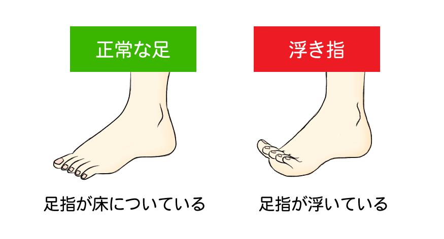 正常な足と浮き指の比較イラスト