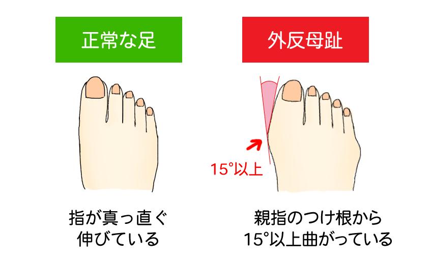 正常な足と外反母趾の比較イラスト