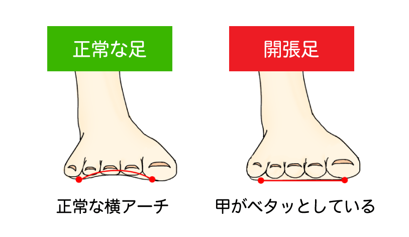 正常な足と開張足の比較イラスト