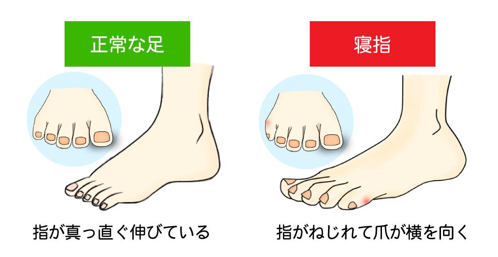 正常な足と寝指の比較イラスト