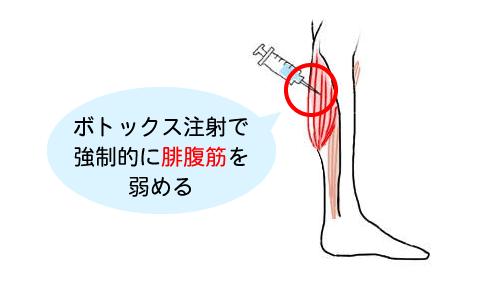 ボトックス注射で強制的に腓腹筋を弱める