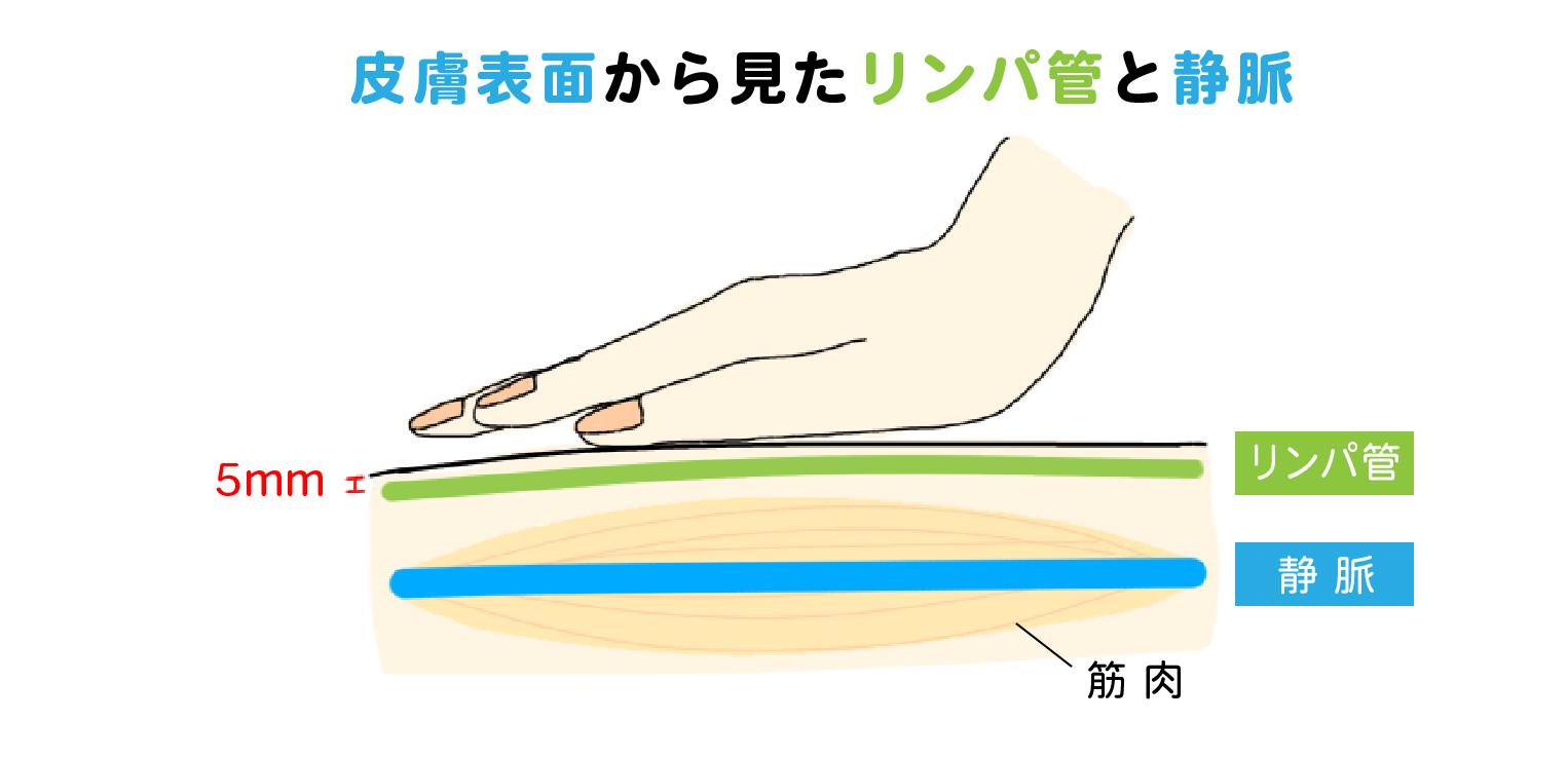 皮膚表面から見たリンパ管と静脈の位置関係図解
