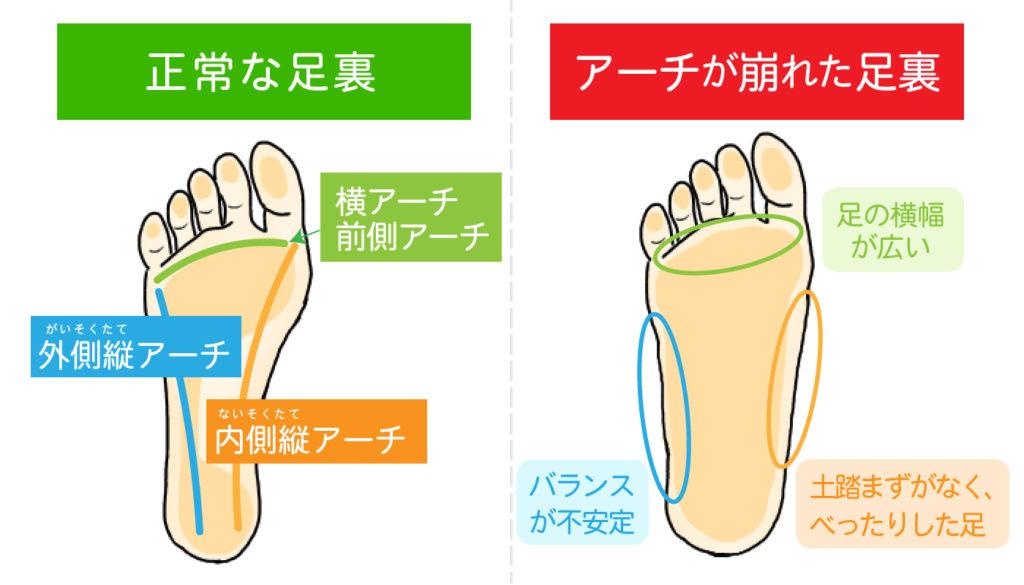 3つの足裏アーチの図解