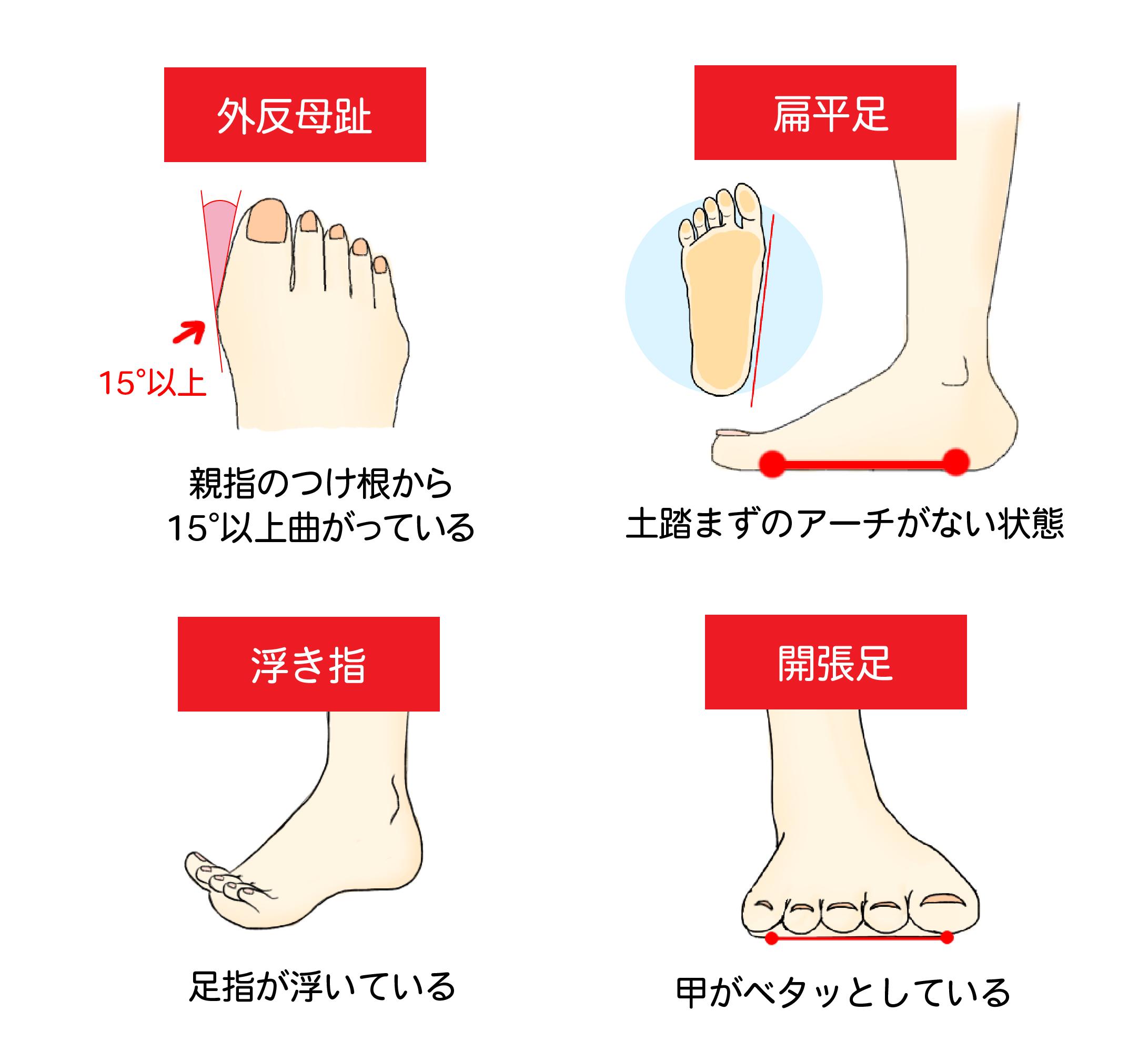 外反母趾:親指の付け根から15°以上曲がっている状態|扁平足:土踏まずのアーチがない状態|浮き指:足指が浮いている状態|開張足:甲がべたっとしている状態