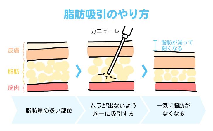 脂肪吸引のやり方を図解
