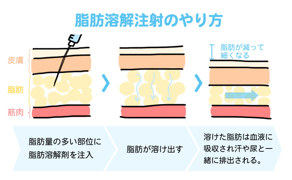 脂肪溶解注射(メソセラピー)のやり方を図解